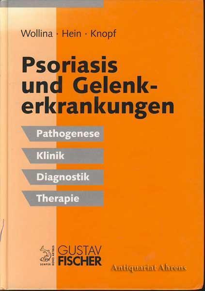 Psoriasis und Gelenkerkrankungen - Pathogenese, Klinik, Diagnostik: Wollina, Uwe