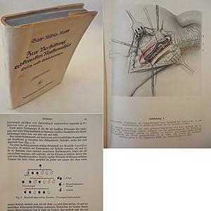 Gesetz zur Verhütung erbkranken Nachwuchses vom 14.Juli: Gütt, Arthur, Ernst