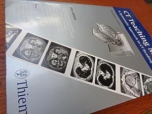 CT Teaching Manual: A Systematic Approach to: Matthias Hofer; MEDIDAK