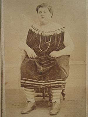 ANTIQUE VICTORIAN CIRCUS  FAT MAN  DRESS TEEPLE'S WOOSTER OHIO SOCKS CDV PHOTO