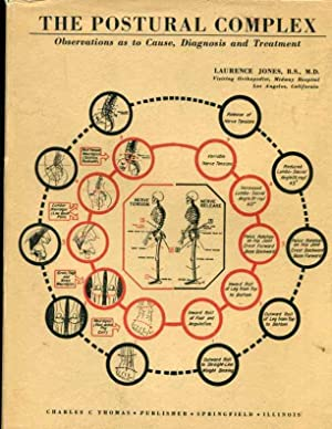 postural complex, observations as to cause,diagnosis and treatment: jones,laurence