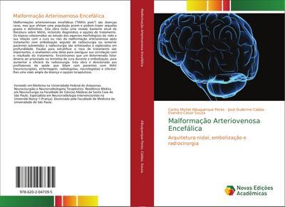 Malformação Arteriovenosa Encefálica : Arquitetura nidal, embolização e radiocirurgia - Carlos Michel Albuquerque Peres