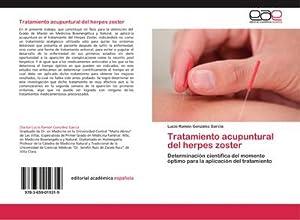 Tratamiento acupuntural del herpes zoster: Lucio Ramón González