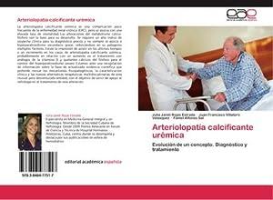 Arteriolopatía calcificante urémica : Evolución de un: Julia Janet Rojas