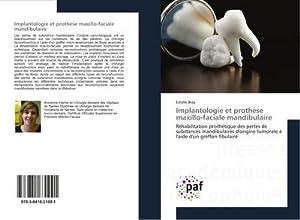 Implantologie et prothèse maxillo-faciale mandibulaire : Réhabilitation: Estelle Bray