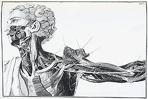 Réflexions et observations anatomico-chirurgicales sur l'anévrisme. Traduites: SCARPA (Antonio)