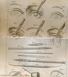 A Treatise on the Cataract; with Cases to Prove the Necessity of Dividing the Transparent Cornea, ...