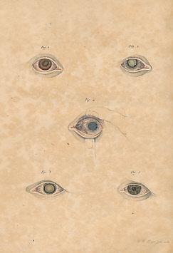 Icones Ophthalmologicae Seu Selecta Circa Morbos Humani Oculi: Weller, Carl Heinrich [Carolus ...