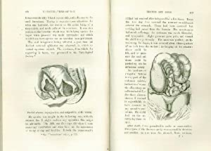 A Treatise on the Diseases, Injuries, and Malformations of the Rectum and the Anus, With Remarks on...
