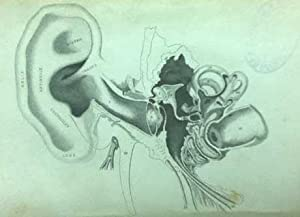 Deafness practically illustrated; Being an Exposition of the Nature, Causes, and Treatment of ...