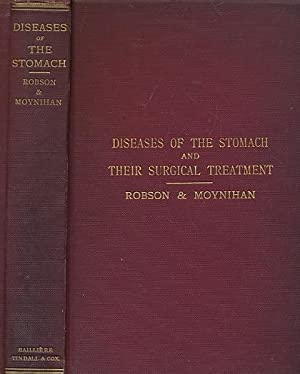 Diseases of the Stomach and Their Surgical Treatment: Robson, A W Mayo; Moynihan, B G A