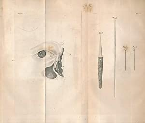 Observations on the Treatment of the Epiphora, or Watery Eye; and on the Fistula Lacrymalis: ...