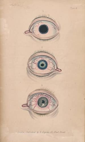 Lectures on Diseases of the Eye: Morgan, John; France, John F [ed.]