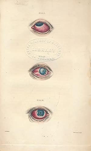A Compendium of the Diseases of the Human Eye, Containing Descriptions and Explanations of the ...