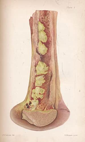 Diseases of Bones and Joints: Macnamara, C N
