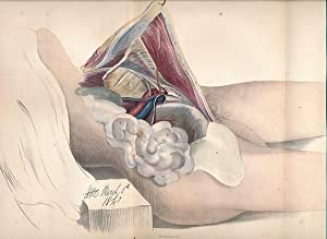 The Surgical Anatomy of Inguinal Herniae, the Testis and its Coverings: Morton, Thomas