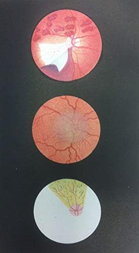 Diseases of the Eye. Part I. Referring Principally to Those Affections Requiring the Aid of the ...