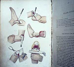 Dictionary of Practical Surgery by Various Hospital Surgeons. Volume I Only: Heath, Christopher [ed...