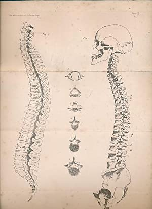 A Treatise on the Human Skeleton (Including the Joints): Humphry, George Murray