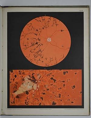 Atlas d'Ophthalmoscopie représentant l'etat normale et les: LIEBREICH R.