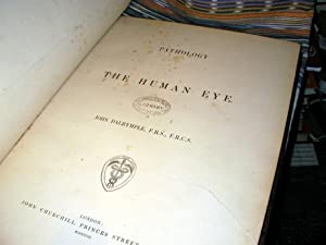 Pathology of the Human Eye: John Dalrymple