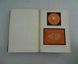 Conjunctivitis samoensis. In: Archiv für Ophthalmologie. Siebenundachzigster Band. Abtheilung ...