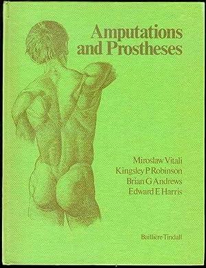 Amputations and Prostheses: Miroslaw Vitali, Kingsley