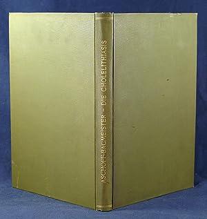 CHOLELITHIASIS: ASCHOFF, L. [Karl Albert Ludwig]