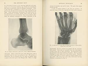 Rontgen Ray Diagnosis and Therapy: Beck, Carl