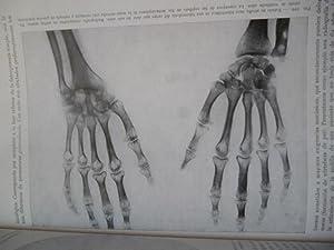 Röntgen-diagnóstico. Tomo Primero. Esqueleto, fascículos 1-6.: H.R. Schinz, W. ...