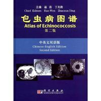 Atlas of Echinococcosis (Second Edition)(Chinese Edition): Hao Wen and Zhaoxun Ding