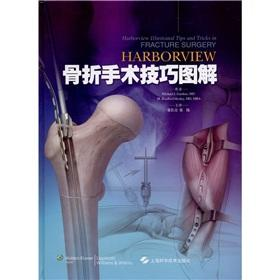 Harborview fracture surgery skills illustrations(Chinese Edition): MEI GUO JIA DE NA Michael ...