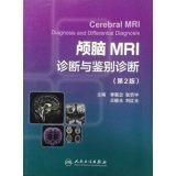 Brain MRI diagnosis and differential diagnosis (2nd: LI LIAN ZHONG