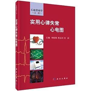 Practical arrhythmia ecg(Chinese Edition): ZHONG GUO QIANG