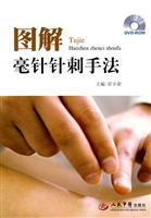 graphic needle acupuncture manipulation (comes with DVD-ROM disc 1) (Paperback)(Chinese Edition): ...