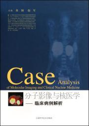 Molecular Imaging and Nuclear Medicine: Clinical Case Analysis(Chinese Edition): HUANG GANG ZHAO ...
