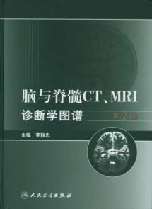 brain and spinal cord CT MRI diagnostics: LI LIAN ZHONG
