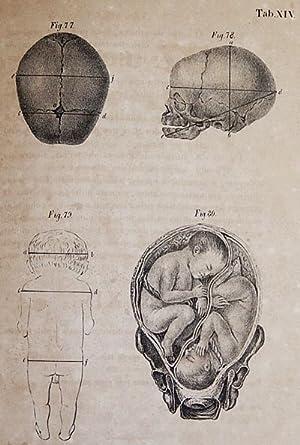 Atlas de Estampas de Arte Obstetricia; do Doutor Dietr. Wilh. Heinr. Busch; copiadas e vertidas do ...