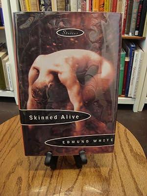 SKINNED ALIVE: White, Edmund