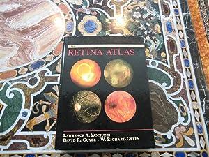 Retina Atlas: Yannuzzi MD, Lawrence