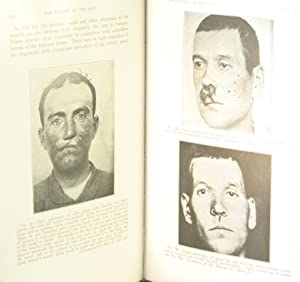 War Surgery of the Face; A Treatise on Plastic Restoration After Facial Injury: ROBERTS, John B.