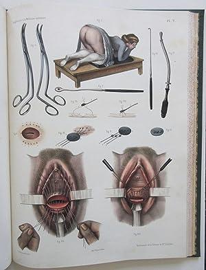 Traité Complet de l'Anatomie de l'Homme comprenant l'Anatomie Chirurgicale et la ...