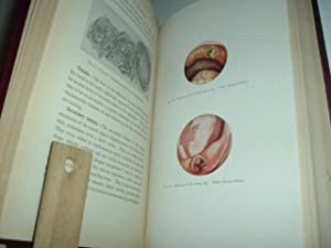 PATHOLOGY OF THE MOUTH By FREDERICK B. MOOREHEAD 1925 First Edition Illustrated: FREDERICK B. ...