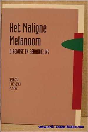 Maligne Melanoom. Diagnose en behandeling.: DE WEVER, Ivo