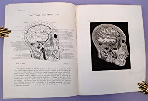 Pyogenic infective diseases of the brain and spinal cord + Atlas of head sections: Macewen, William