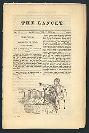 Observations on transfusion of blood. In The Lancet 2 (1828-29): 321-24: Blundell, James