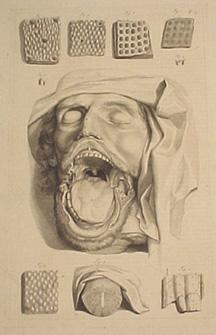 Plate 13 (head w/dissected jaw & tongue) from Anatomia humani corporis. 44x27.5cm (image size) ...