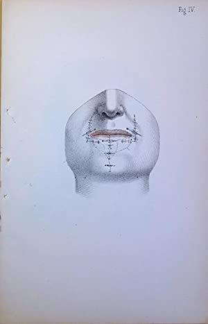 1).Partial reconstruction of the face. (2) .Reconstructing lower lip. Offprints inscribed by the ...