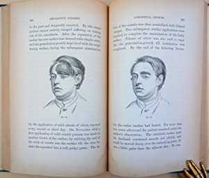 Contributions to reparative surgery. 86 wood-engraved illustrations: Buck, Gurdon