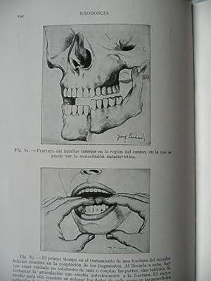 TRATADO DE EXODONCIA, extracción de los dientes, cirugía estomatológica y ...
